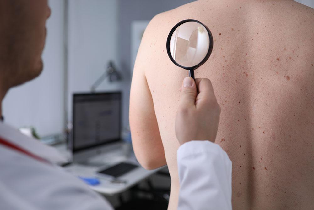 Tipologie di tumori alla pelle