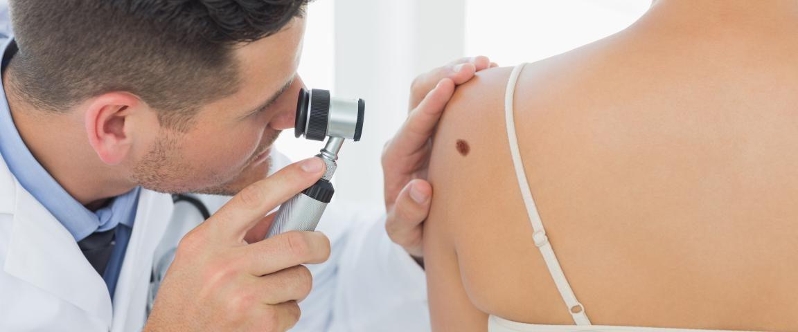 Dermatologo Epiluminescenza Milano
