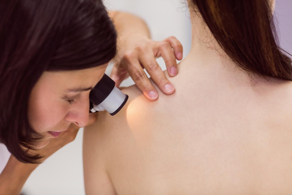 visita dermatologica con dermatoscopio