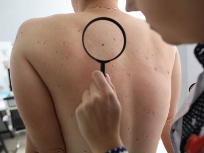 Srv-Visita-dermatologica